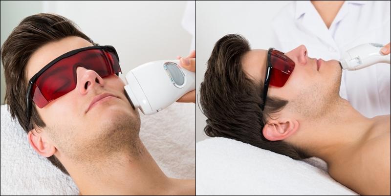 лазерная эпиляция для бороды